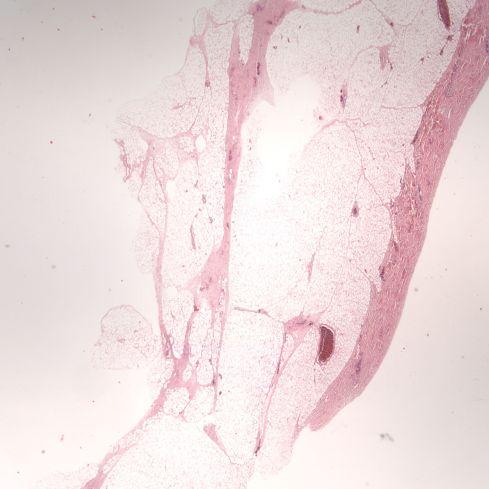 Fig 1 CA00-65_2xskin