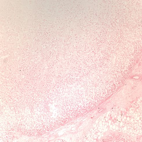 Fig 2 CA00-65_10xadr