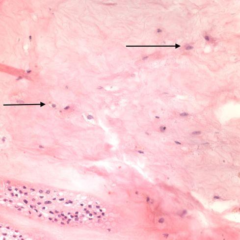 Fig 5 CA02-94_40xmembr