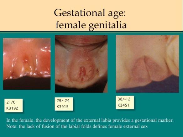 Autopsy Manual: Gestational Age | obstetrical pathology