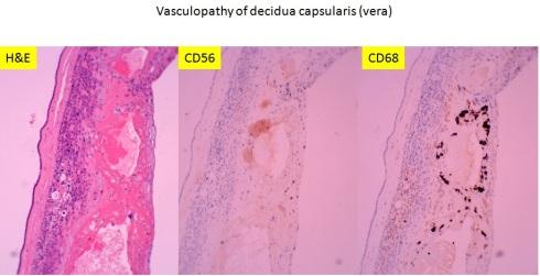 Decidua vera vasculopathy
